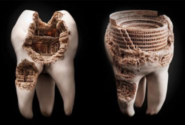 با دندانهای پوسیده خود خداحافظی کنید.