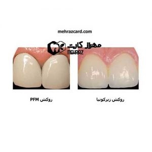 انواع-روکش-دندان