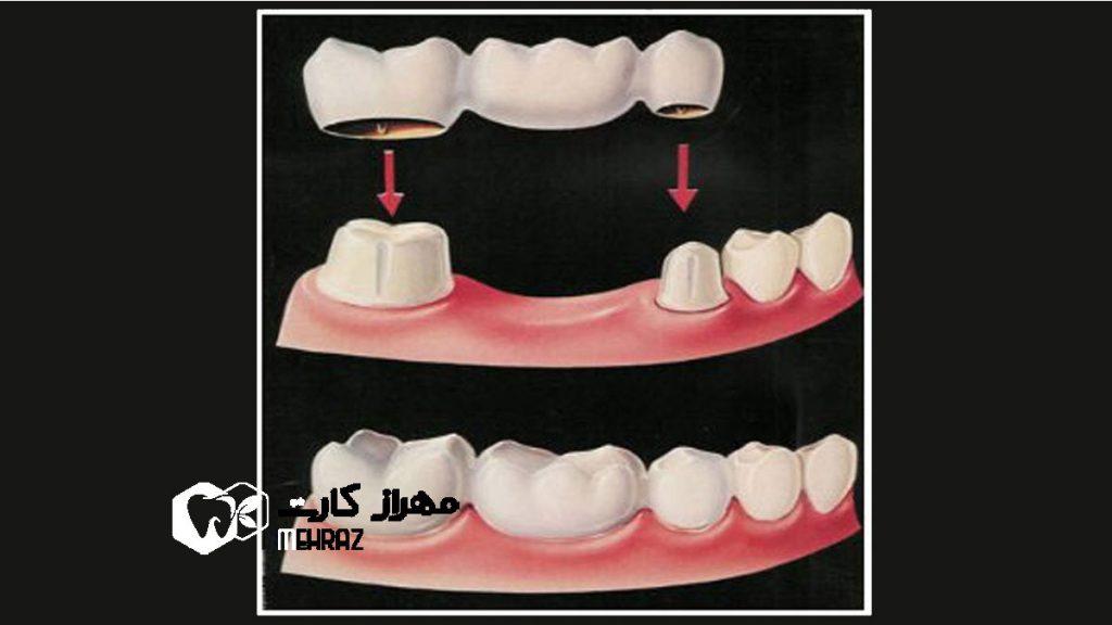 بریج-دندان