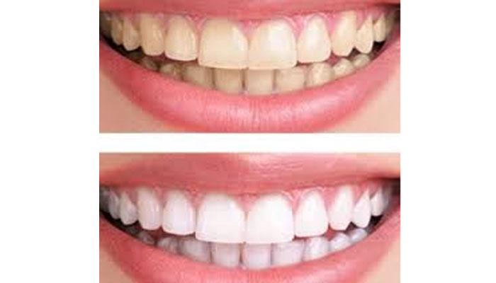 روش-خانگی-سفید-کردن-دندان-ها