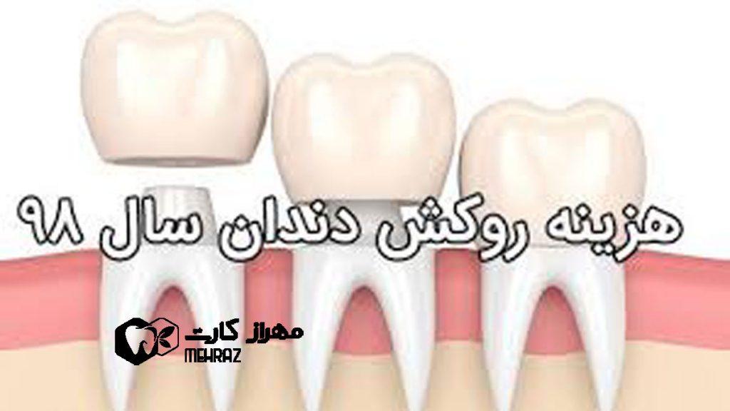روکش-دندان