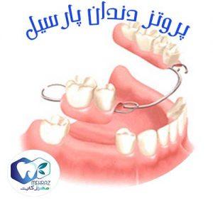 پروتز-دندان-پارسیل