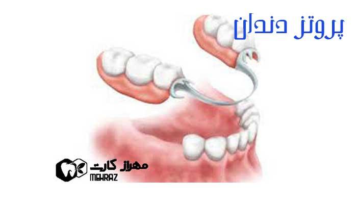 پروتز-دندان