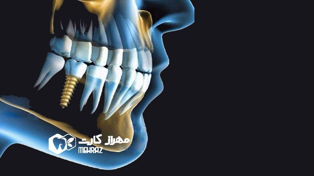 کاشت-دندان-ایمپلنت