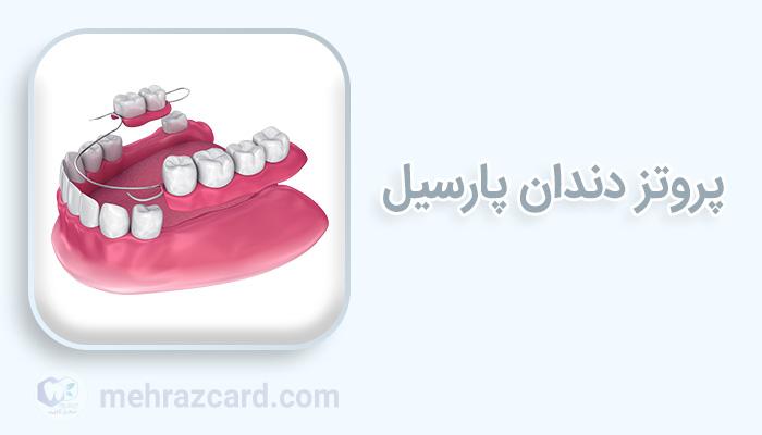 پروتز دندان پارسیل
