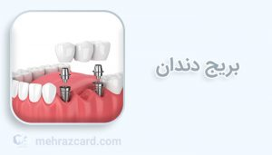 ویدئو بریج دندان
