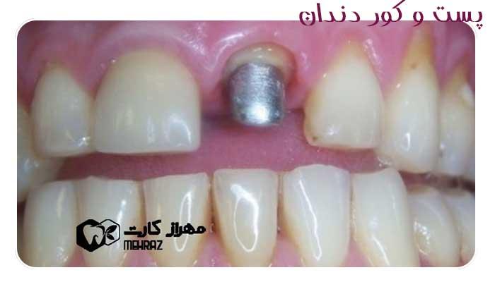 پست-و-کور-دندان