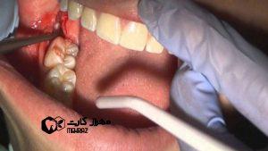 مراقبت-پس-از-جراحی-دندان
