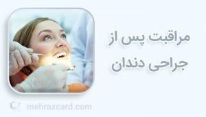 مراقبت پس از جراحی دندان
