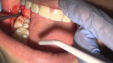 کشیدن و جراحی دندان، و مراقبت های بعد از آن
