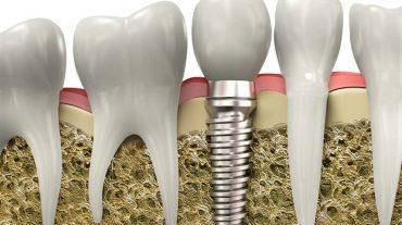 مراحل درمان ایمپلنت دندان