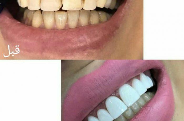 ونیر کامپوزیت دندان – یک