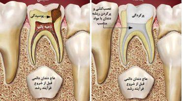 درمان ریشه باید توسط دندانپزشک عمومی انجام شود یا متخصص اندو؟