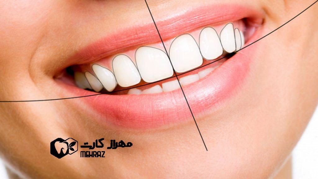 اصلاح-طرح-لبخند