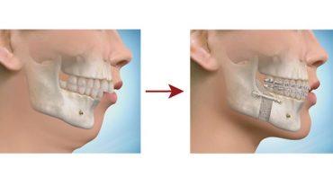 معرفی و بررسی انواع جراحی های زیبایی لثه، فک و دندان