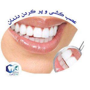 عصب-کشی-و-پر-کردن-دندان
