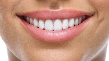 هزینه عصب کشی و پر کردن دندان سال ۹۸