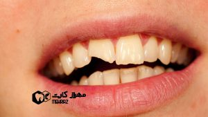 شکستگی-دندانها