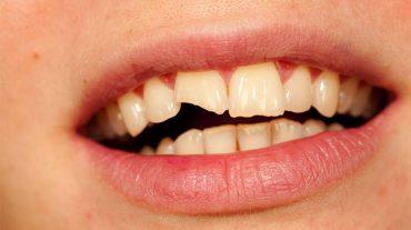 انواع شکستگی دندان و روش درمان آنها