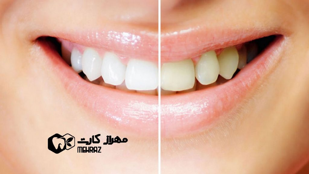 تغییر-رنگ-دندانها