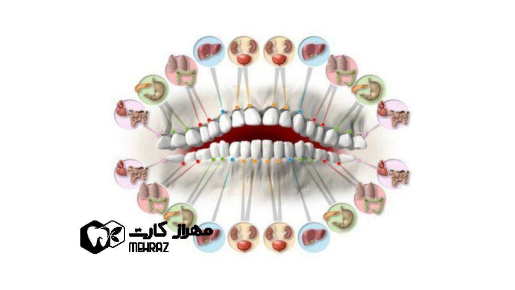 دندان-درد-و-اختلال-در-بدن