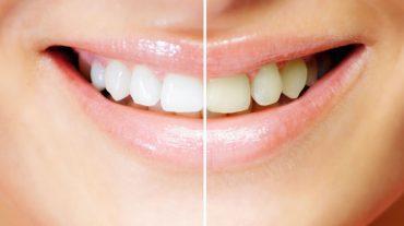 بررسی دلایل تغییر رنگ دندان ها