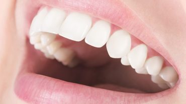 علت پوسیدگی دندانها، انواع پوسیدگی و هزینه درمان