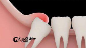 کشیدن-دندان-عقل