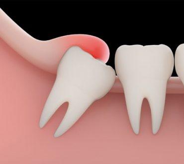 مزایا و معایب کشیدن دندان عقل