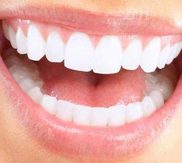 سفید کردن دندانها، بلیچینگ یا ونیر کامپوزیت؟
