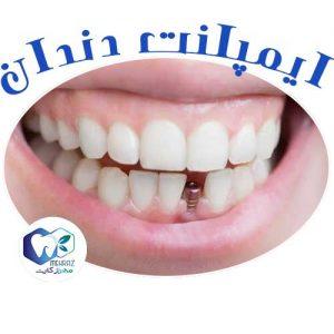 هزینه-ایمپلنت-دندان
