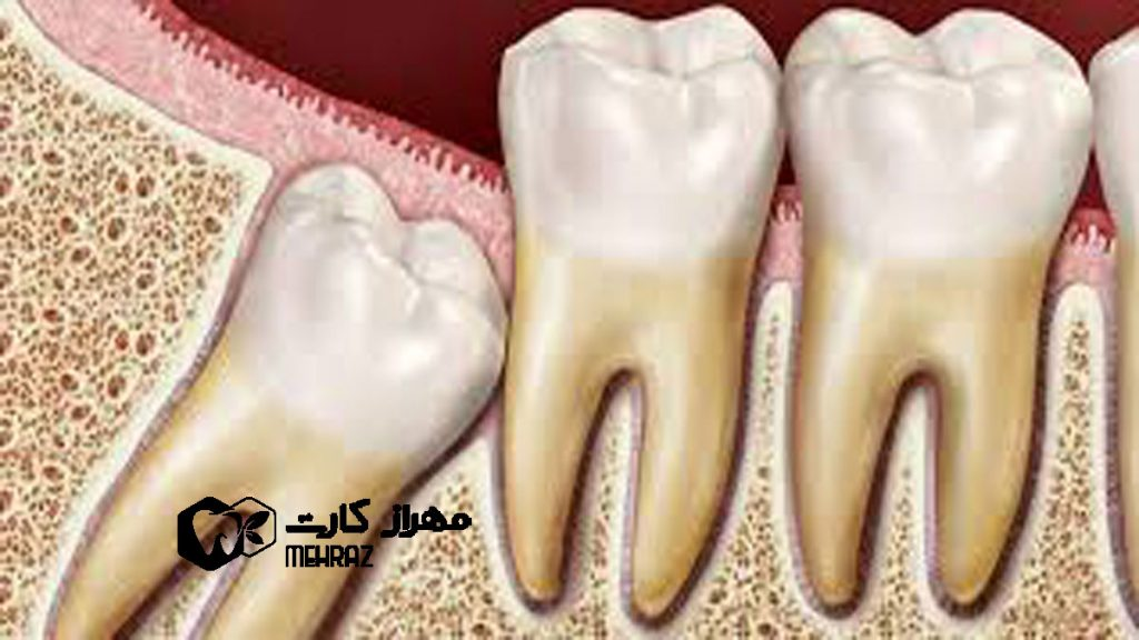 هزینه کشیدن دندان عقل سال 99 مهراز کارت