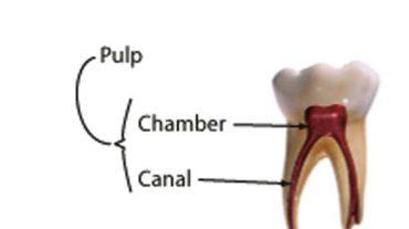 تفاوت پالپوتومی با عصب کشی دندان