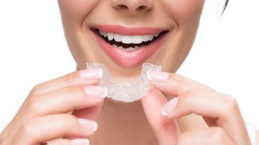 نایت گارد یا محافظ دهان چیست؟