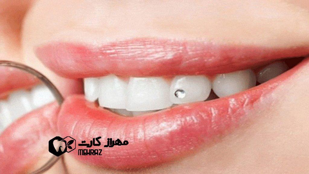 نگین-دندان
