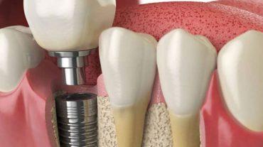 تاثیر استفاده از داروهای ضد پوکی استخوان بر ایمپلنت