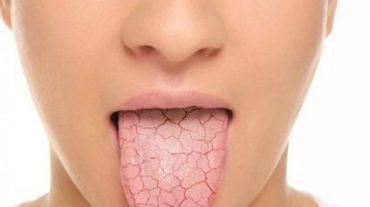 خشکی دهان و دلایل آن
