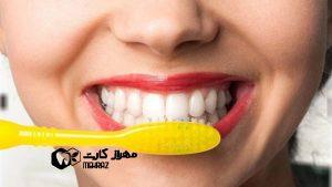 پلاک-دندان