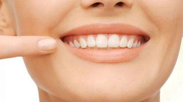 پلاک دندان چیست؟