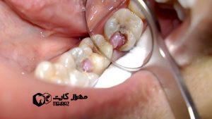 بیماری-بافت-اطراف-دندان