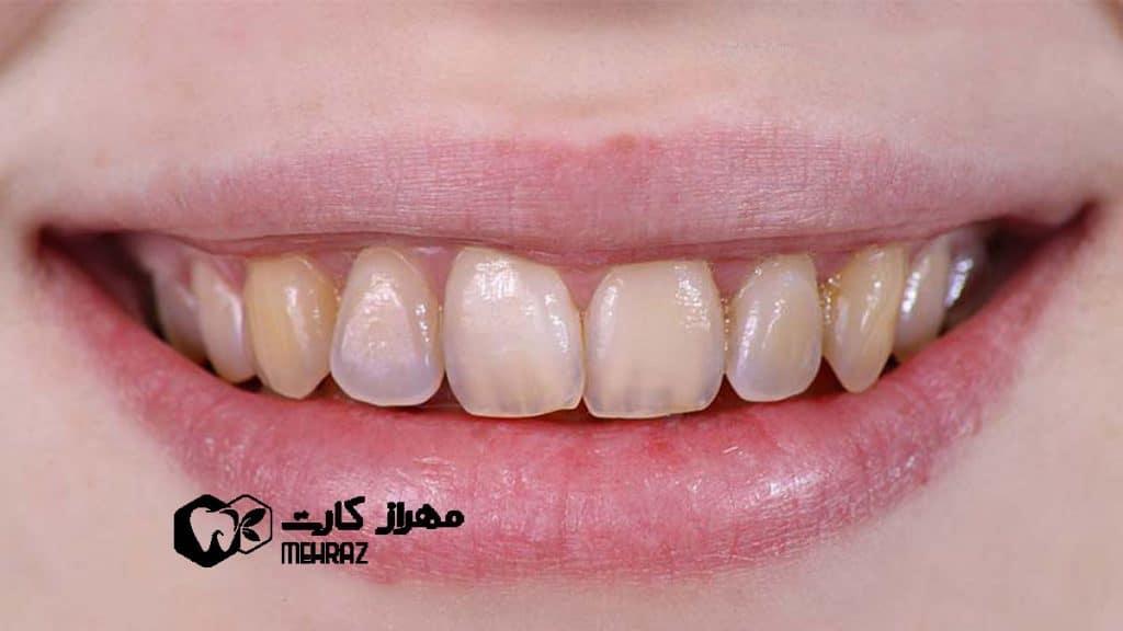 تخریب-مینای-دندان