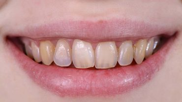 آسیب دیدگی مینای دندان