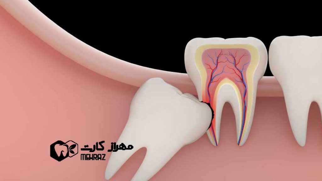 دندان-نهفته