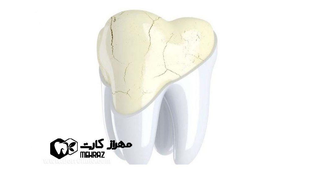 سایش-و-فرسایش-دندان