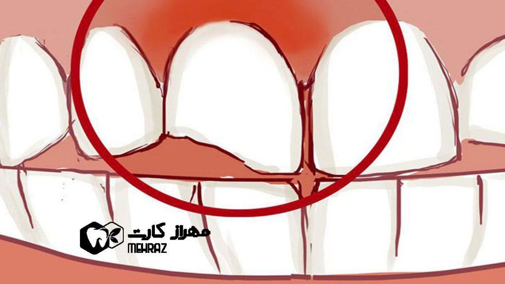 شکستگی-و-ترک-دندان