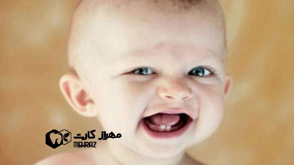 مراقبت-از-دندان-کودک