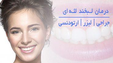 درمان لبخند لثه ای | روش های جراحی و غیر جراحی