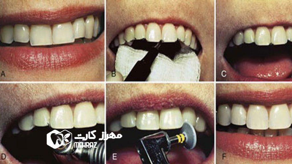 اصلاح-دندان-با-تراش