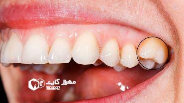 انکیلوز دندان | جوش خوردن دندان به استخوان فک