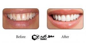 باندینگ-دندان